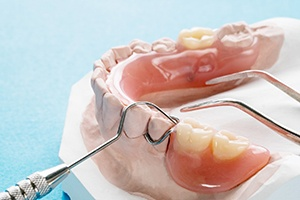 Closeup of partial dentures being made
