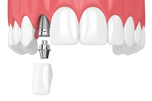 Animation of placing dental implant