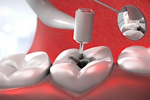 Animation of the root canal process
