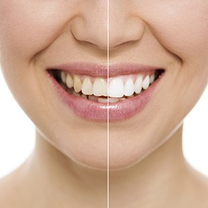 Smile split in half showing before and after whitening