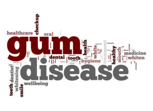 sign that says gum disease