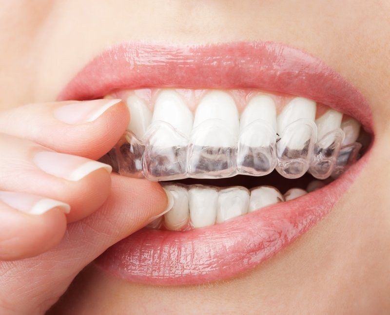 an Invisalign aligner in a person's mouth